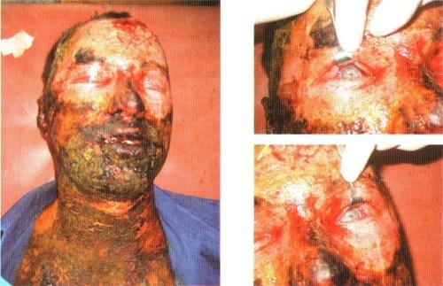Ожоги при поступлении в отделение травмы глаза